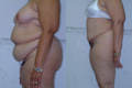 Abdominoplasty and liposuction 1