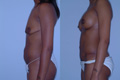 Body sculpting Abdomen and Breast1c