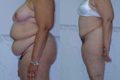 sculpting by abdominoplasty and exyensive liposuction 4