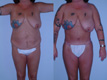 sculpting by liposuction and abdominoplasty 2