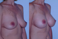 300cc_Silicone implant above the muscle_B_toD_1