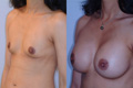 350cc_silicone implant below muscle_AtoC_2