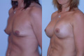350cc_silicone implant2 below muscle_AtoC_1.jpg