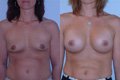 350cc_silicone implant2 below muscle_AtoC_2