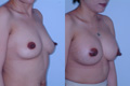 350cc_silicone implant_above the muscle_1