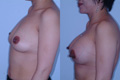 350cc_silicone implant_above the muscle_2