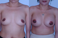 350cc_silicone implant_above the muscle_3