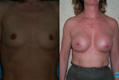 375cc silicone breast implant above the muscle_A_to_Cplus_1