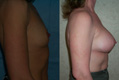 375cc silicone breast implant above the muscle_A_to_Cplus_2