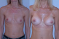 375cc_silicone implant below muscle_2