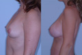 400cc silicone implant.above the muscle_B_to_DD_2