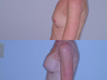 400cc. silicone implant above the muscle_B_to_DD_3