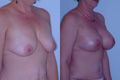 above the muscle 400 cc silicone implant_C_to_DD_1