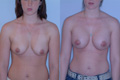 asymetric breast silicone implant 350cc the other 400cc above_muscle_BtoCplus_1