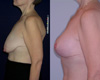 Breast Lift abd Breast Implant 3c