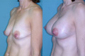 Breast Lift and Breast Implant 1b