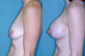 Breast Lift and Breast Implant 1c