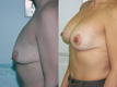 Breast Lift and Breast Implant 4c