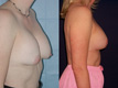 Breast Lift and Repositioning of Implant 1b