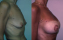Breast lift and Implant 2a