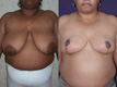 Breast Reduction 10c