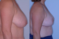 Breast Reduction 14b