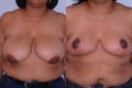 Breast Reduction 15a