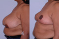 Breast Reduction 15b