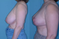 Breast Reduction 17b