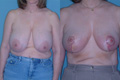 Breast Reduction 17c