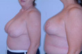 Breast Reduction 2b