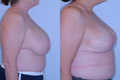 Breast Reduction 2c