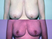 Breast Reduction 3a