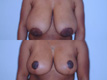 Breast Reduction 4a