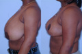 Breast Reduction 4c