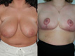 Breast Reduction 5a