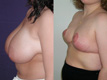 Breast Reduction 5b