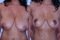 Breast Reduction 6a