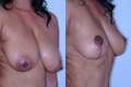 Breast Reduction 6c