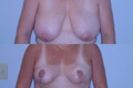 Breast Reduction 7b