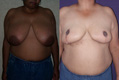 Breast Reduction 8c