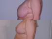 Breast Reduction 9a