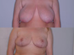 Breast Reduction 9b