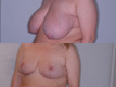 Breast Reduction 9c