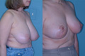 Breast_Reduction_11a