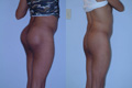 Buttock Enhancement by Implant 4a
