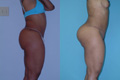 Buttock Enhancement by Implant 7b