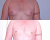 Gynecomastia by excision and liposuction 2b