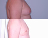 Gynecomastia by excision and liposuction 2c