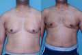 Gynecomastia by excision and liposuction 4a